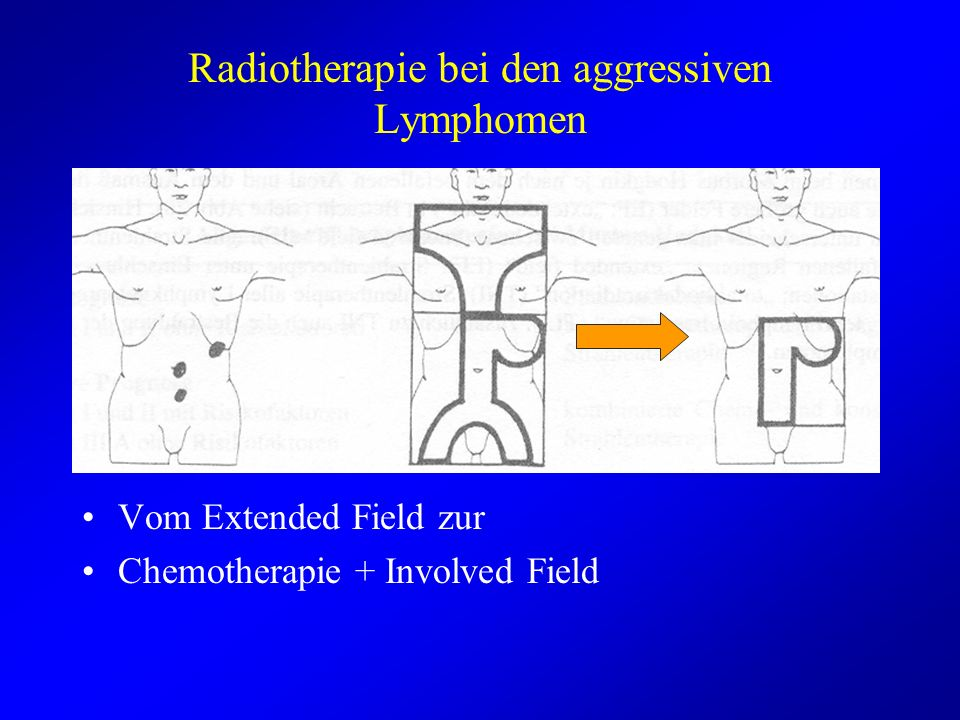 Radiotherapie bei den aggressiven Lymphomen