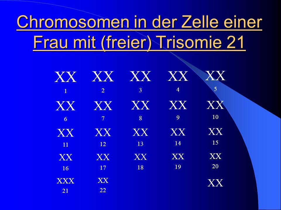 Chromosomen in der Zelle einer Frau mit (freier) Trisomie 21