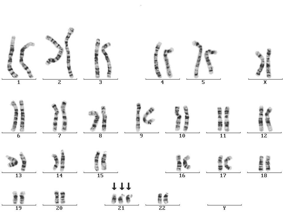 Bild einer Chromosomenanomalie