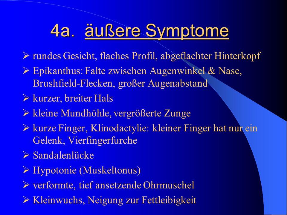 4a. äußere Symptome rundes Gesicht, flaches Profil, abgeflachter Hinterkopf.