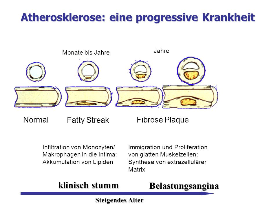 Atherosklerose: eine progressive Krankheit