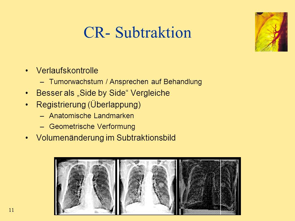 """CR- Subtraktion Verlaufskontrolle Besser als """"Side by Side Vergleiche"""