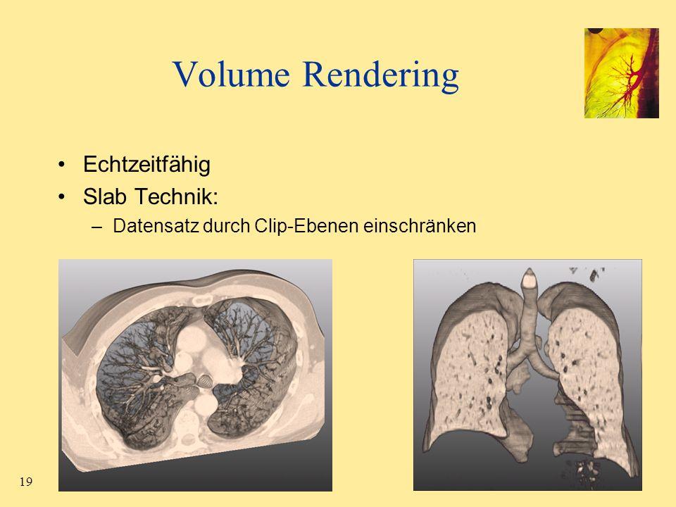 Volume Rendering Echtzeitfähig Slab Technik: