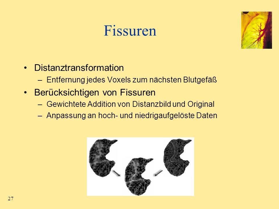 Fissuren Distanztransformation Berücksichtigen von Fissuren