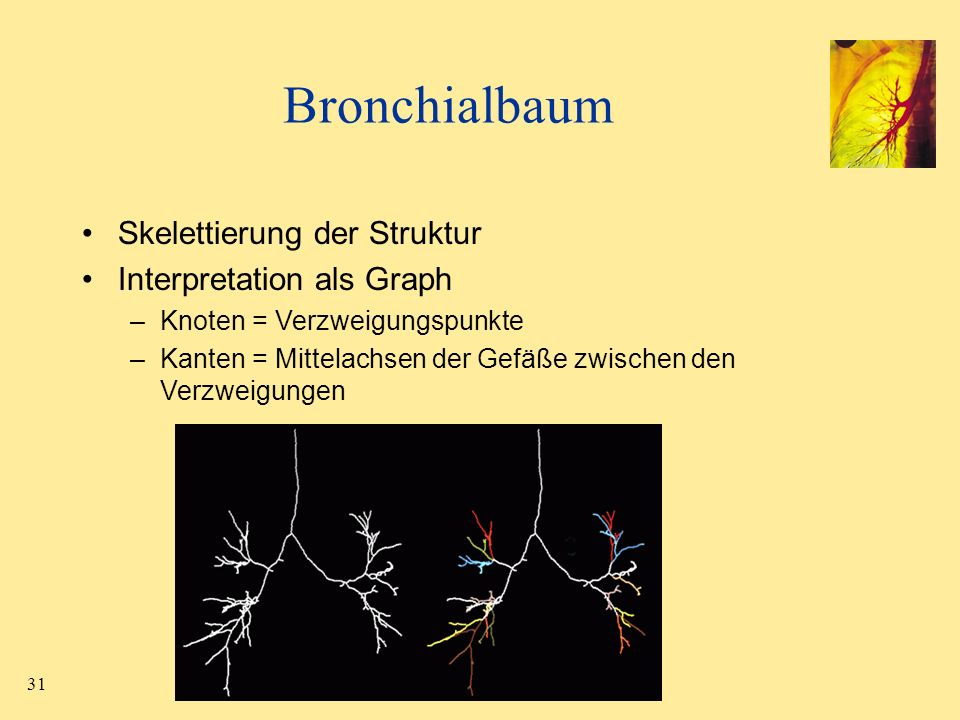 Bronchialbaum Skelettierung der Struktur Interpretation als Graph