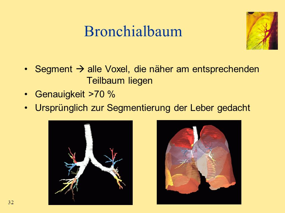 Bronchialbaum Segment  alle Voxel, die näher am entsprechenden Teilbaum liegen. Genauigkeit >70 %