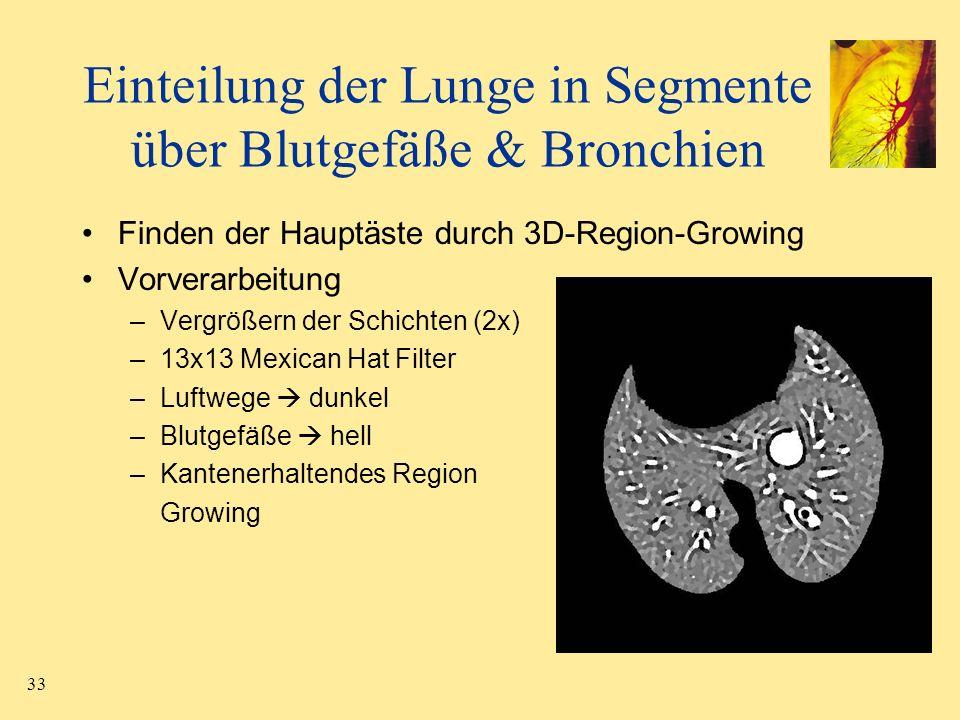 Einteilung der Lunge in Segmente über Blutgefäße & Bronchien