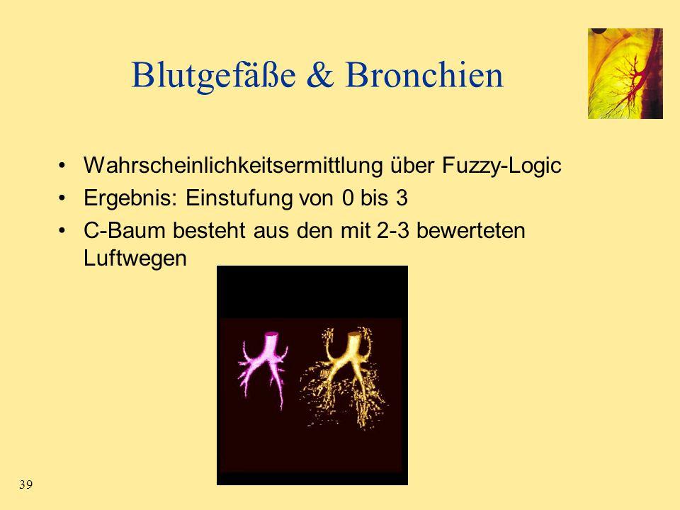 Blutgefäße & Bronchien