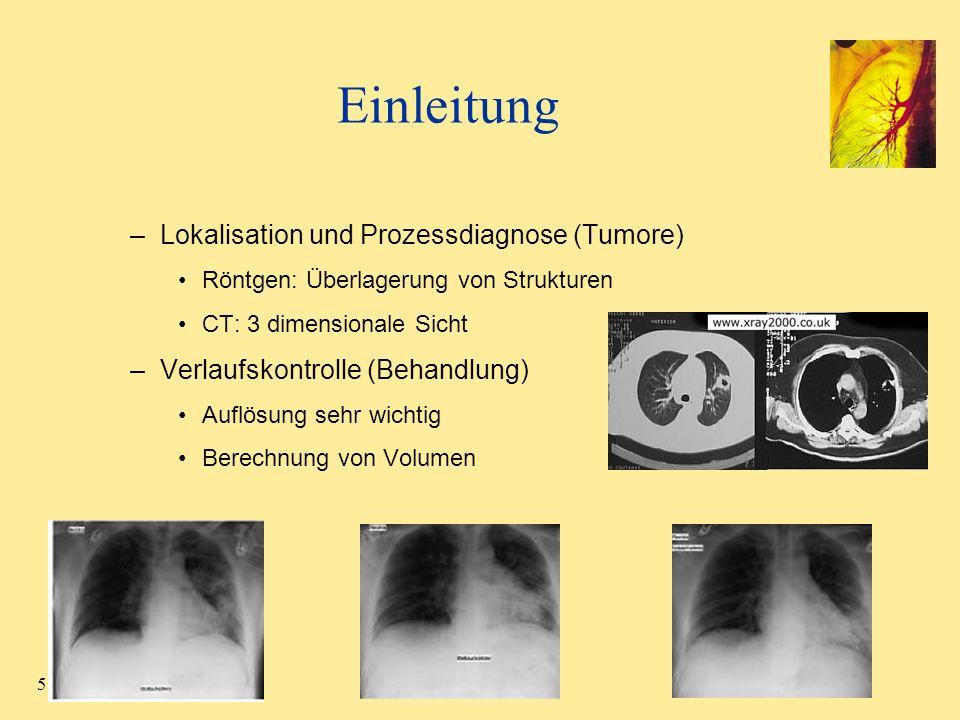 Einleitung Lokalisation und Prozessdiagnose (Tumore)