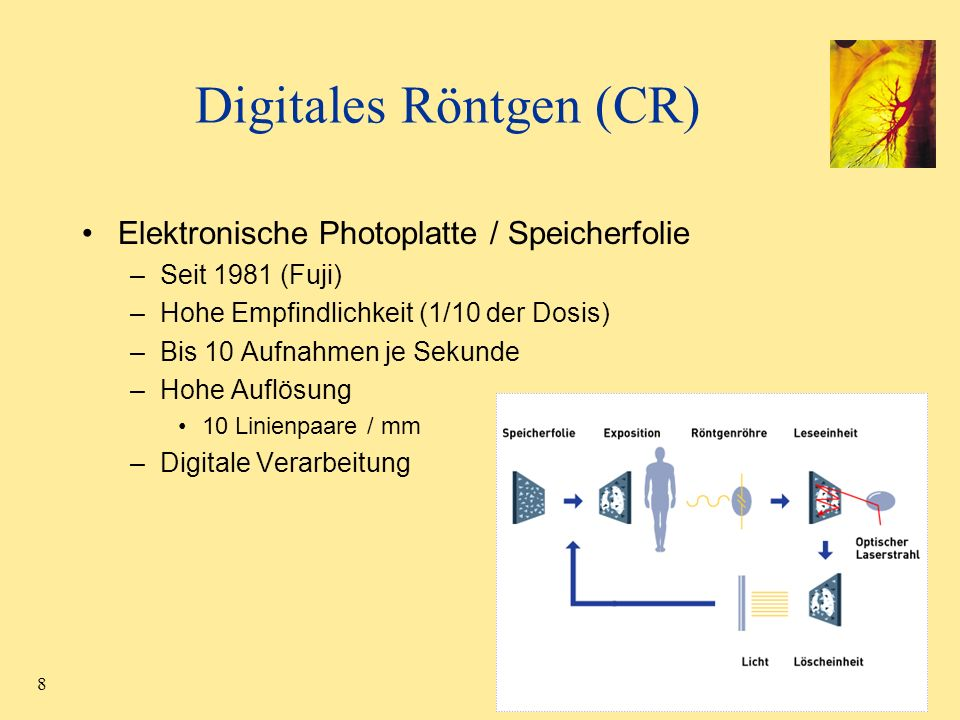 Digitales Röntgen (CR)