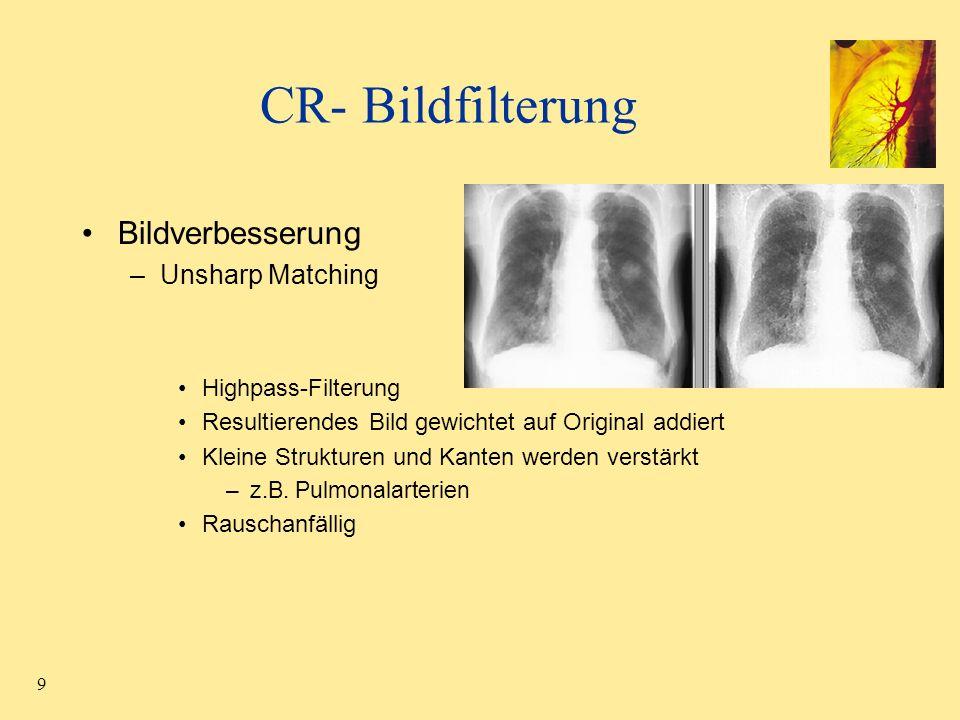 CR- Bildfilterung Bildverbesserung Unsharp Matching Highpass-Filterung