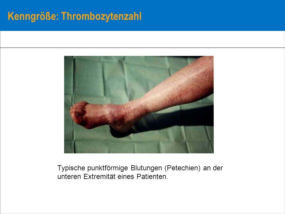 Kenngröße: Thrombozytenzahl