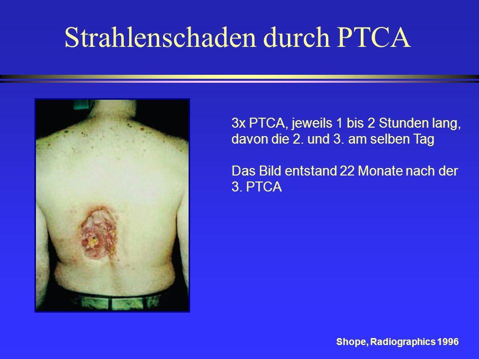 Strahlenschaden durch PTCA