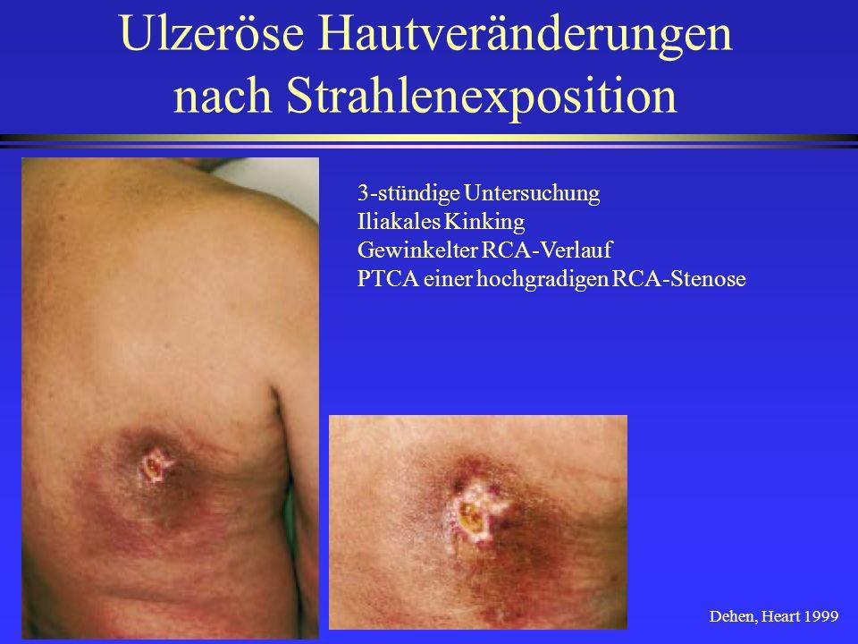 Ulzeröse Hautveränderungen nach Strahlenexposition