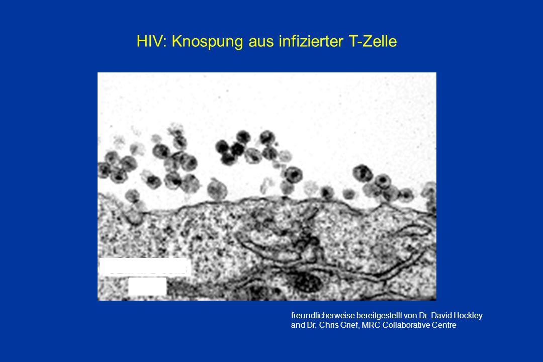 HIV: Knospung aus infizierter T-Zelle