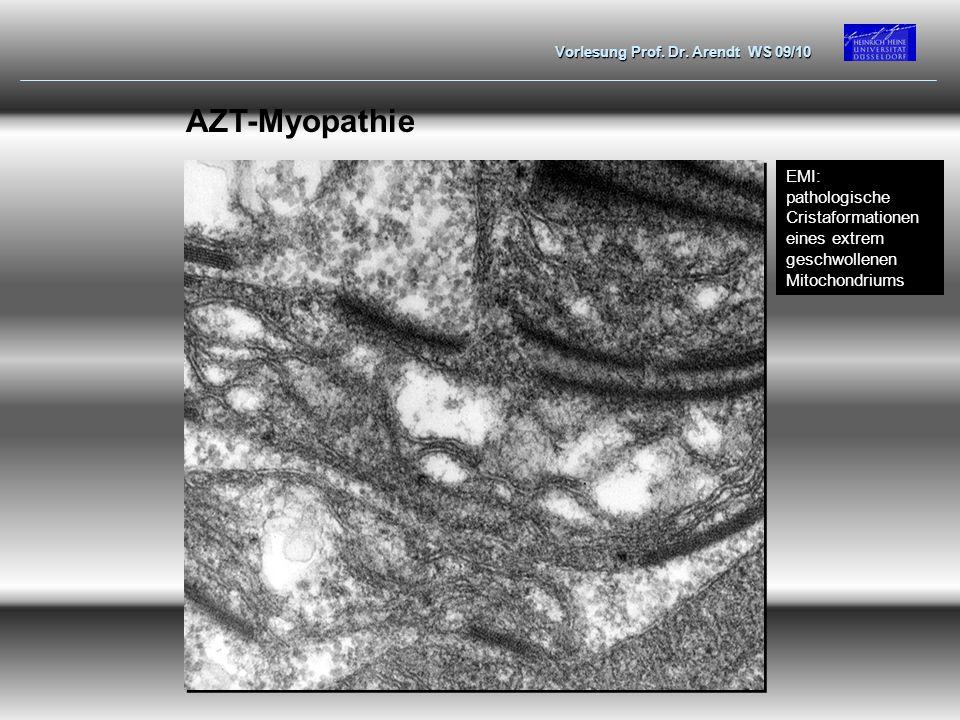AZT-Myopathie EMI: pathologische Cristaformationen eines extrem geschwollenen Mitochondriums