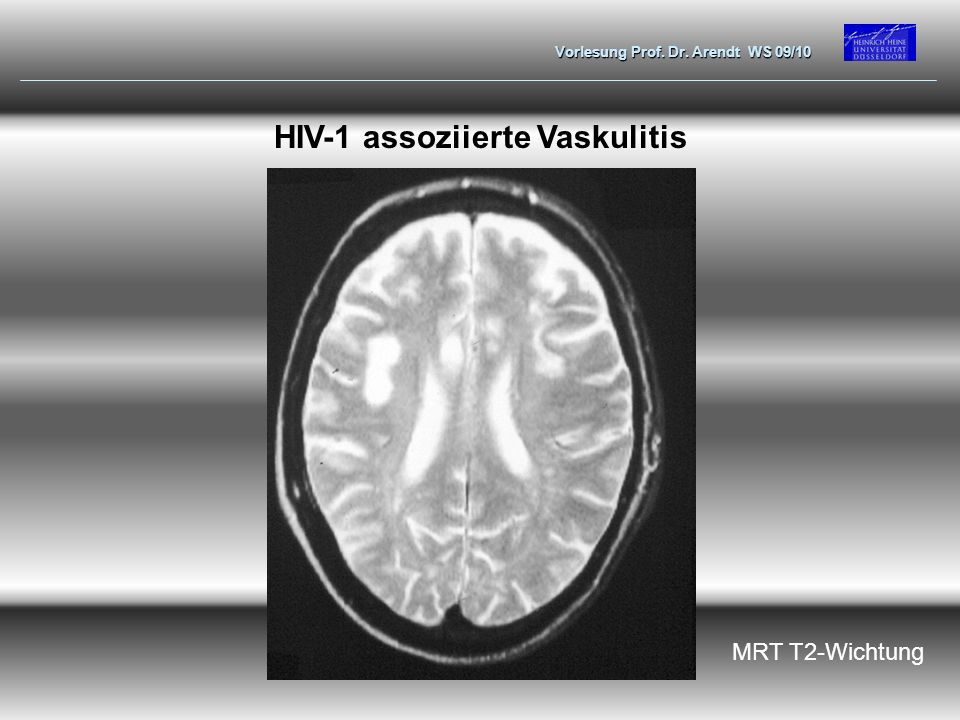 HIV-1 assoziierte Vaskulitis