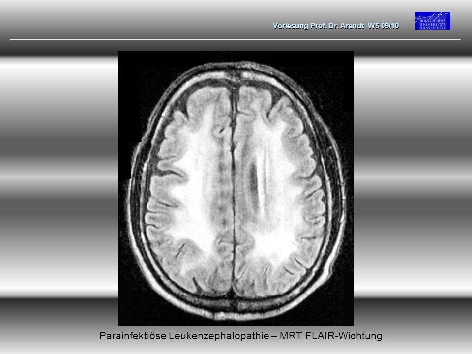 Parainfektiöse Leukenzephalopathie – MRT FLAIR-Wichtung