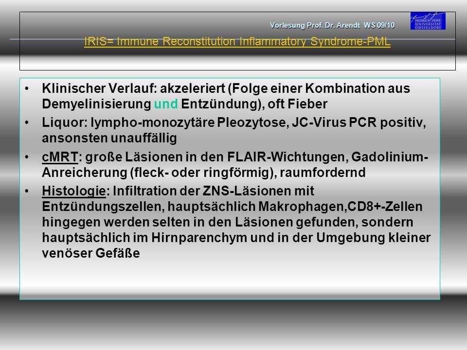 IRIS= Immune Reconstitution Inflammatory Syndrome-PML