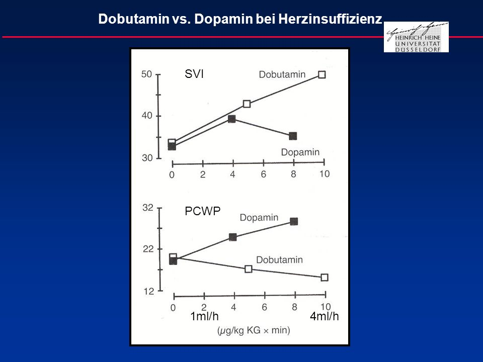 Dobutamin vs. Dopamin bei Herzinsuffizienz