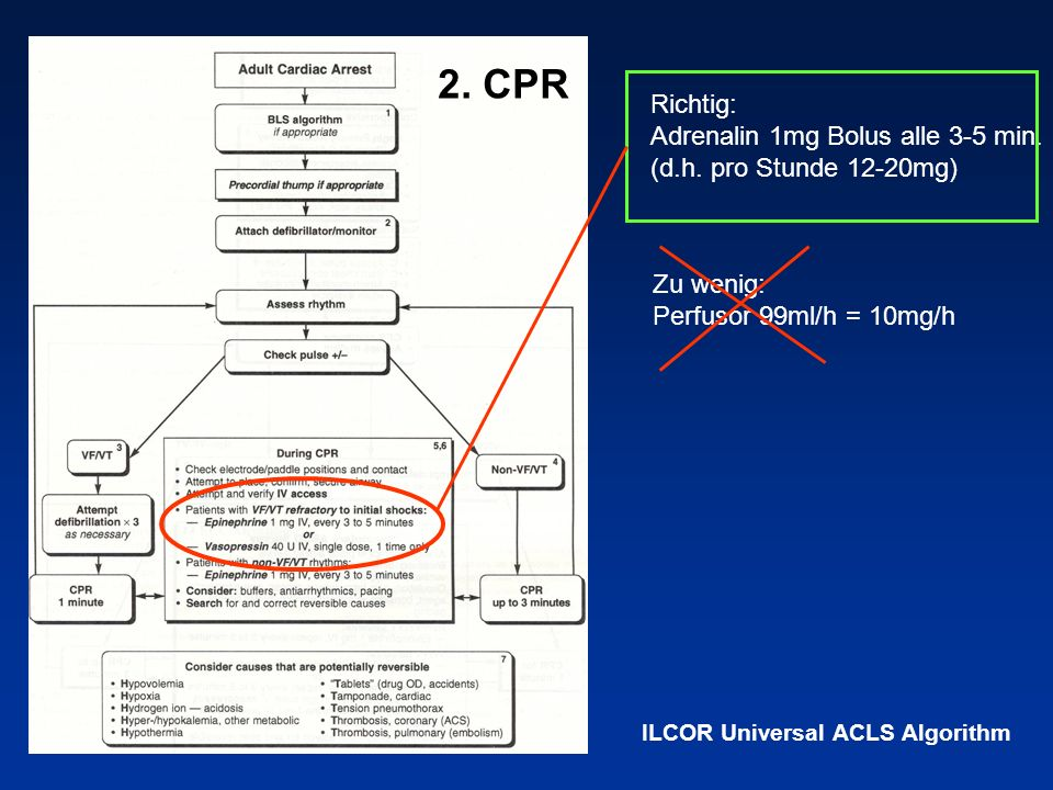 2. CPRRichtig: Adrenalin 1mg Bolus alle 3-5 min. (d.h. pro Stunde 12-20mg) Zu wenig: Perfusor 99ml/h = 10mg/h.