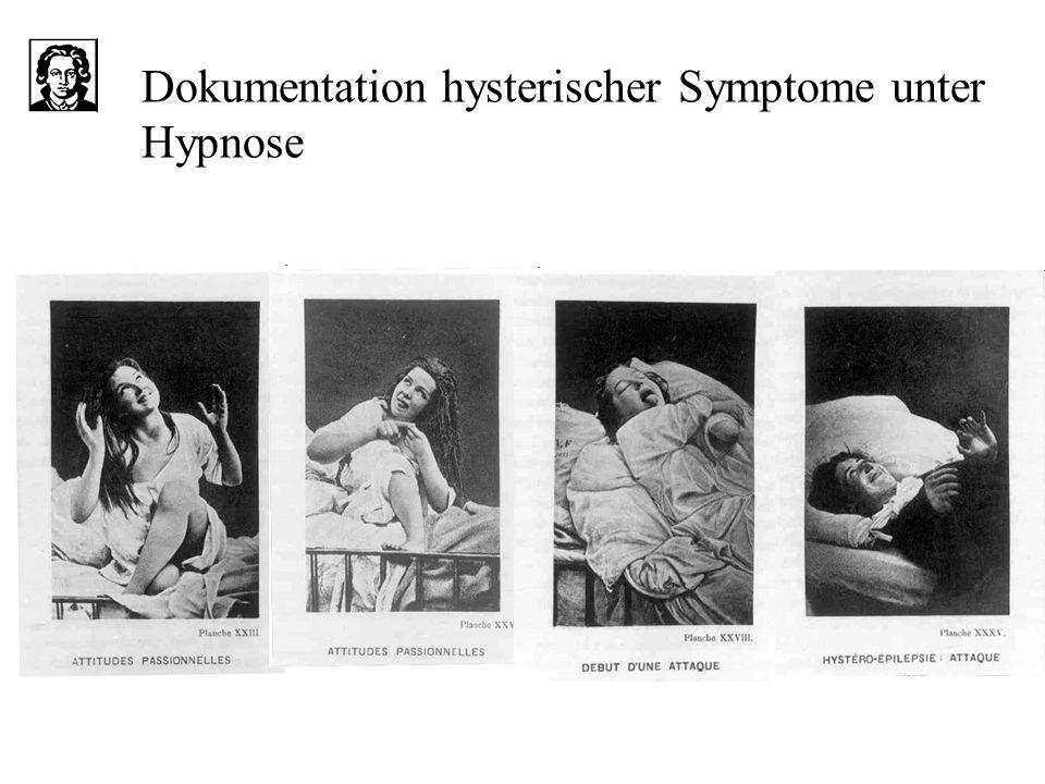 Dokumentation hysterischer Symptome unter Hypnose