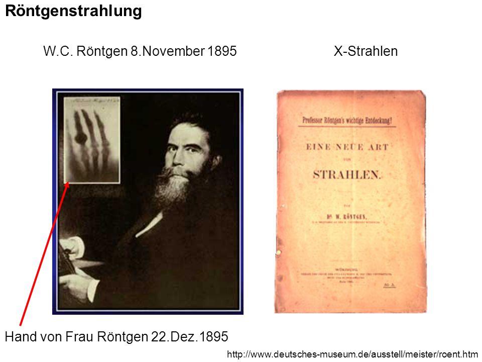 Hand von Frau Röntgen 22.Dez.1895