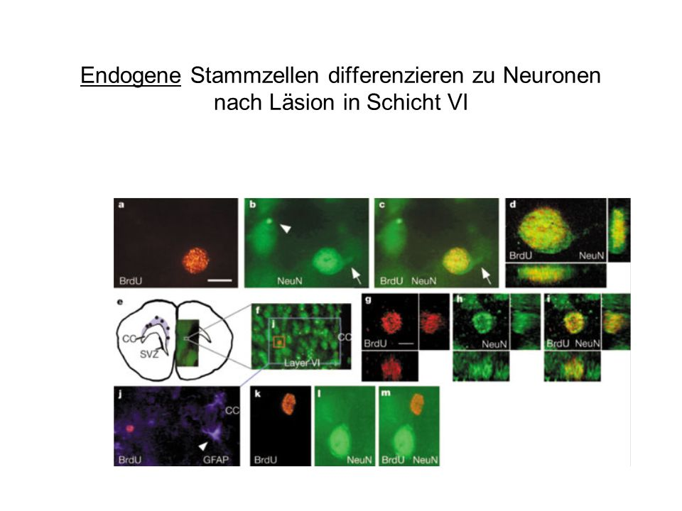 Endogene Stammzellen differenzieren zu Neuronen nach Läsion in Schicht VI