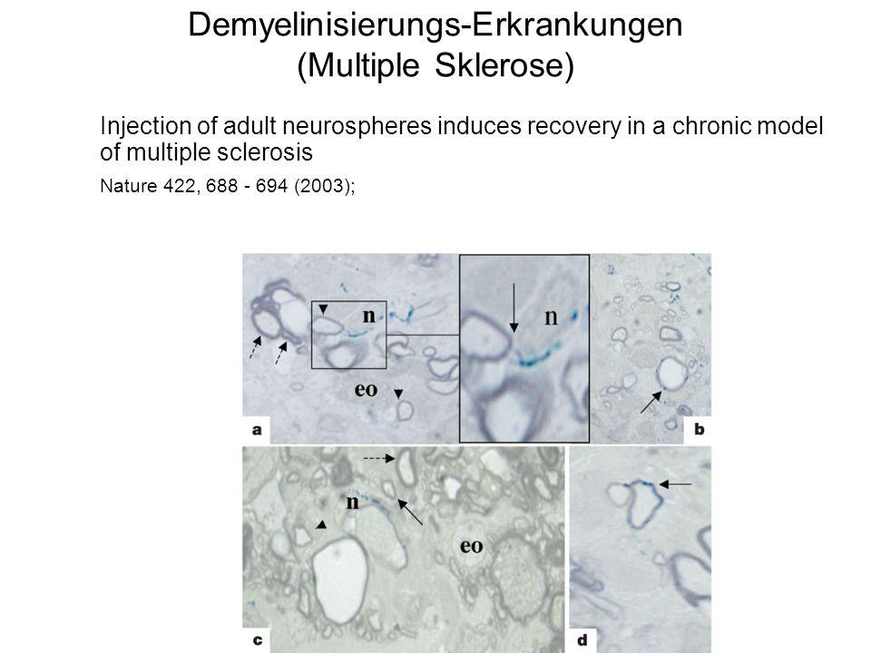Demyelinisierungs-Erkrankungen (Multiple Sklerose)
