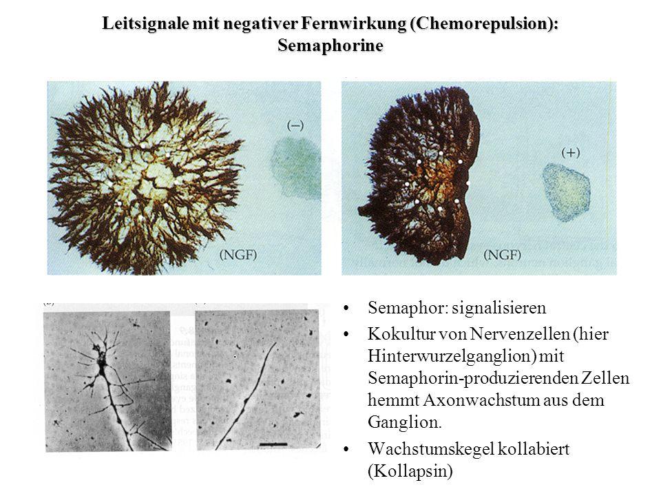 Leitsignale mit negativer Fernwirkung (Chemorepulsion): Semaphorine