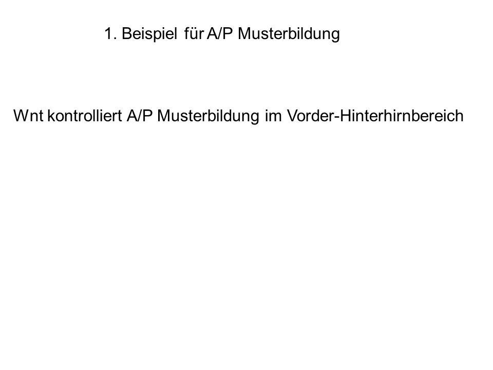 1. Beispiel für A/P Musterbildung