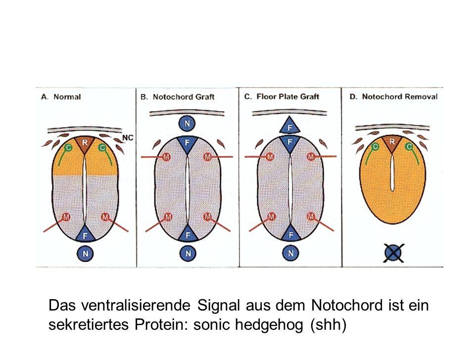 Das ventralisierende Signal aus dem Notochord ist ein