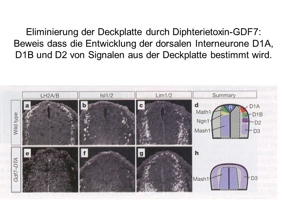 Eliminierung der Deckplatte durch Diphterietoxin-GDF7: Beweis dass die Entwicklung der dorsalen Interneurone D1A, D1B und D2 von Signalen aus der Deckplatte bestimmt wird.