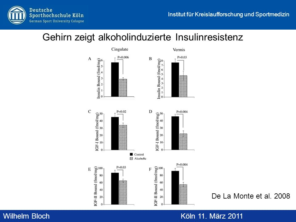Gehirn zeigt alkoholinduzierte Insulinresistenz
