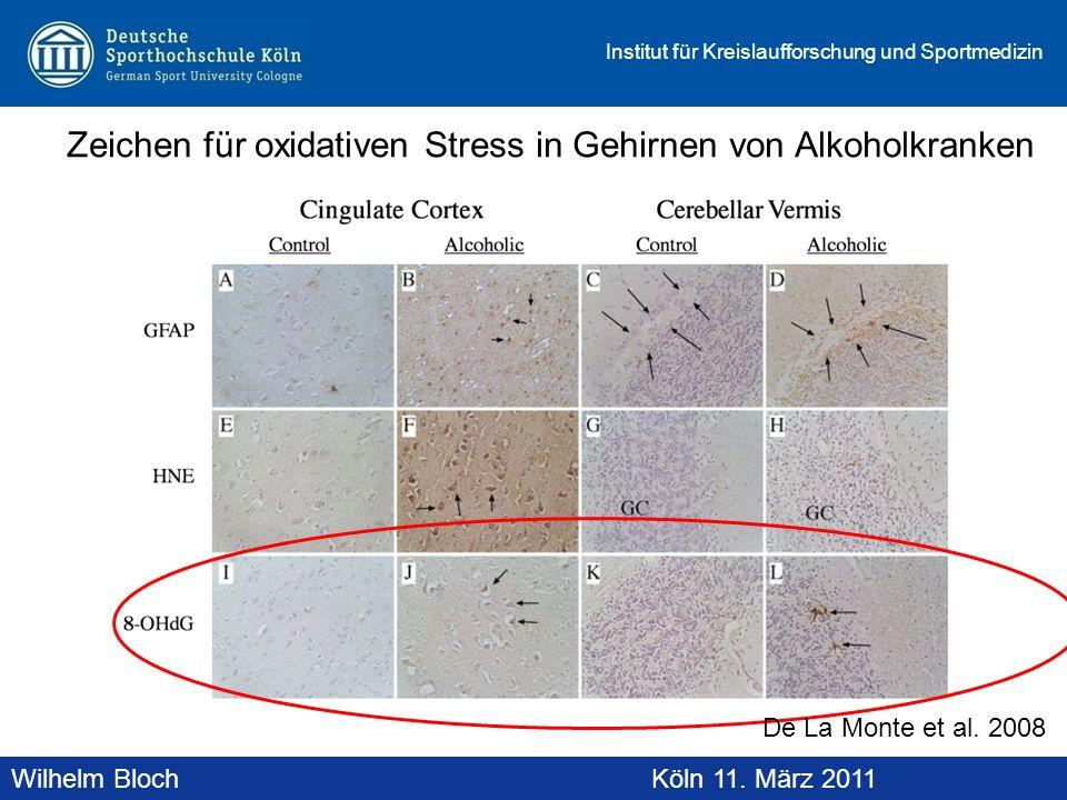 Zeichen für oxidativen Stress in Gehirnen von Alkoholkranken