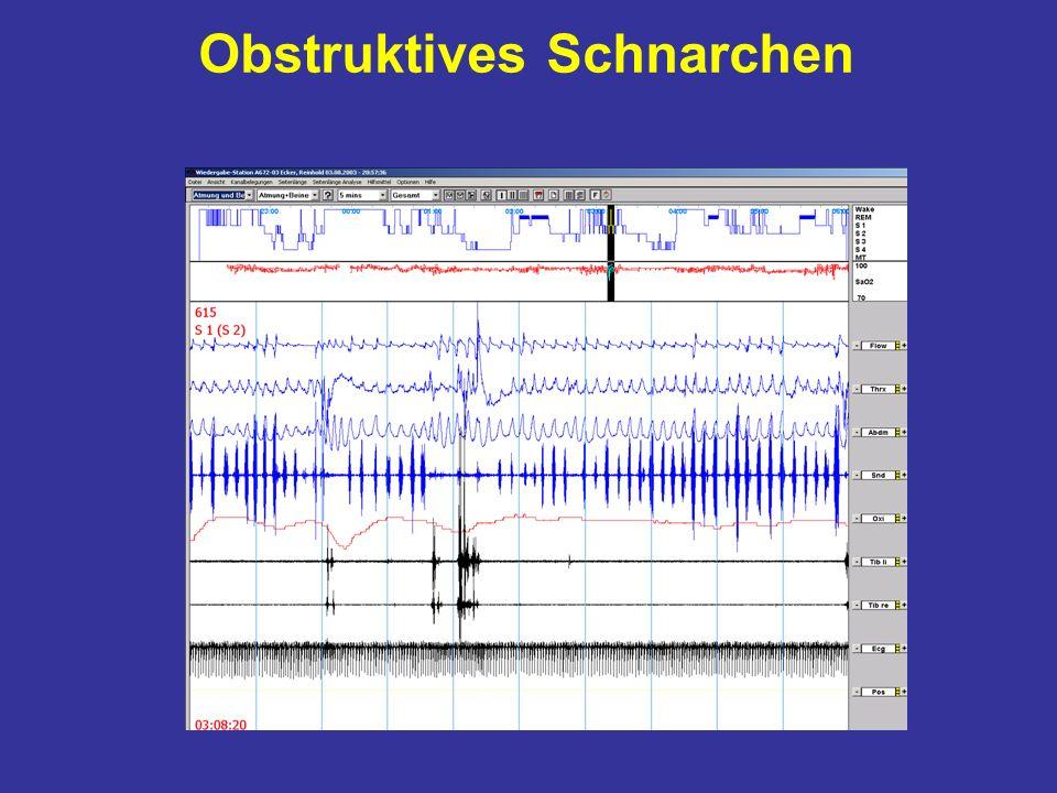Obstruktives Schnarchen