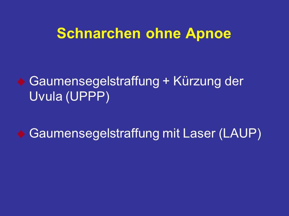 Schnarchen ohne Apnoe Gaumensegelstraffung + Kürzung der Uvula (UPPP)