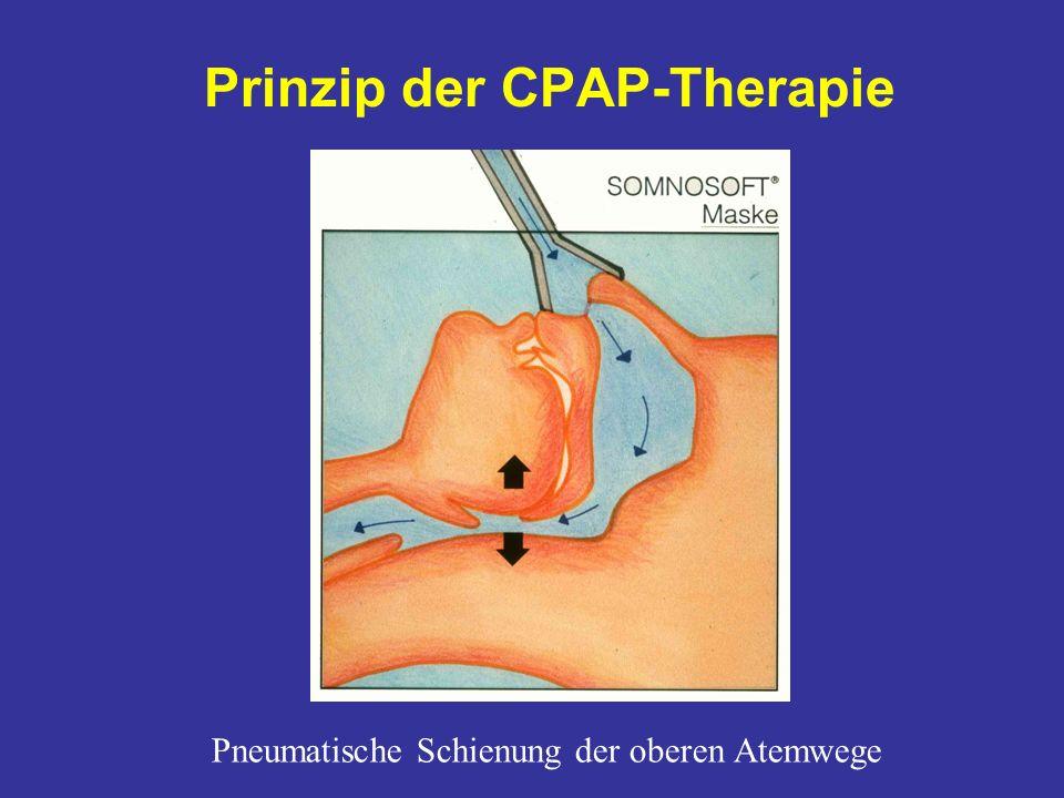 Prinzip der CPAP-Therapie