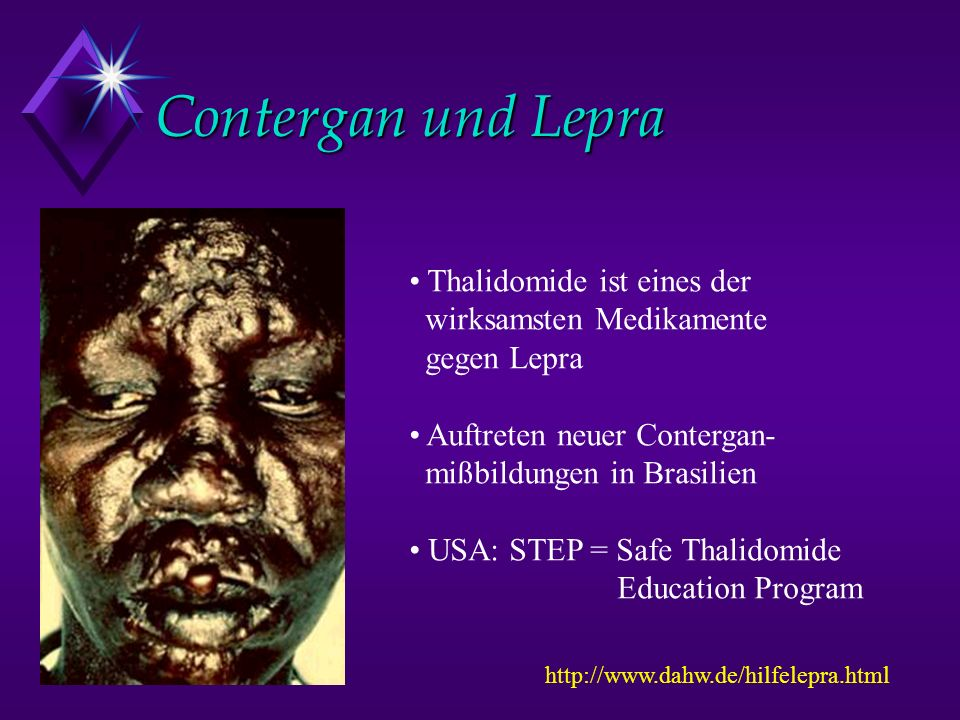 Contergan und Lepra Thalidomide ist eines der wirksamsten Medikamente