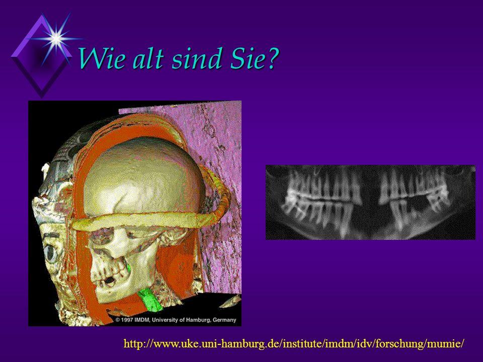Wie alt sind Sie http://www.uke.uni-hamburg.de/institute/imdm/idv/forschung/mumie/ 20