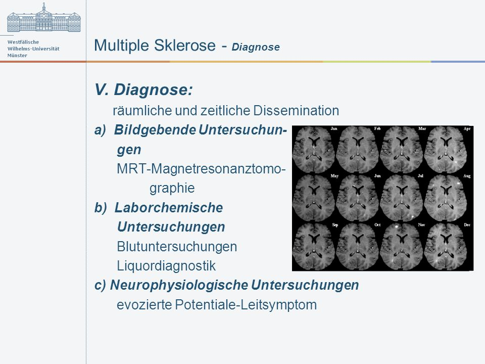 Multiple Sklerose - Diagnose