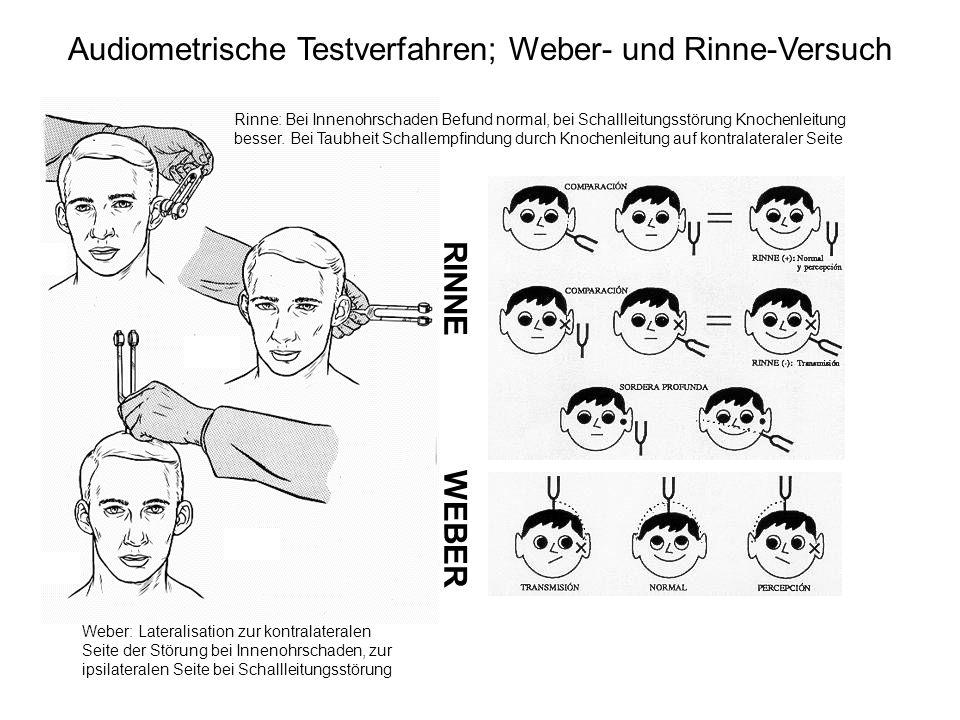 Audiometrische Testverfahren; Weber- und Rinne-Versuch
