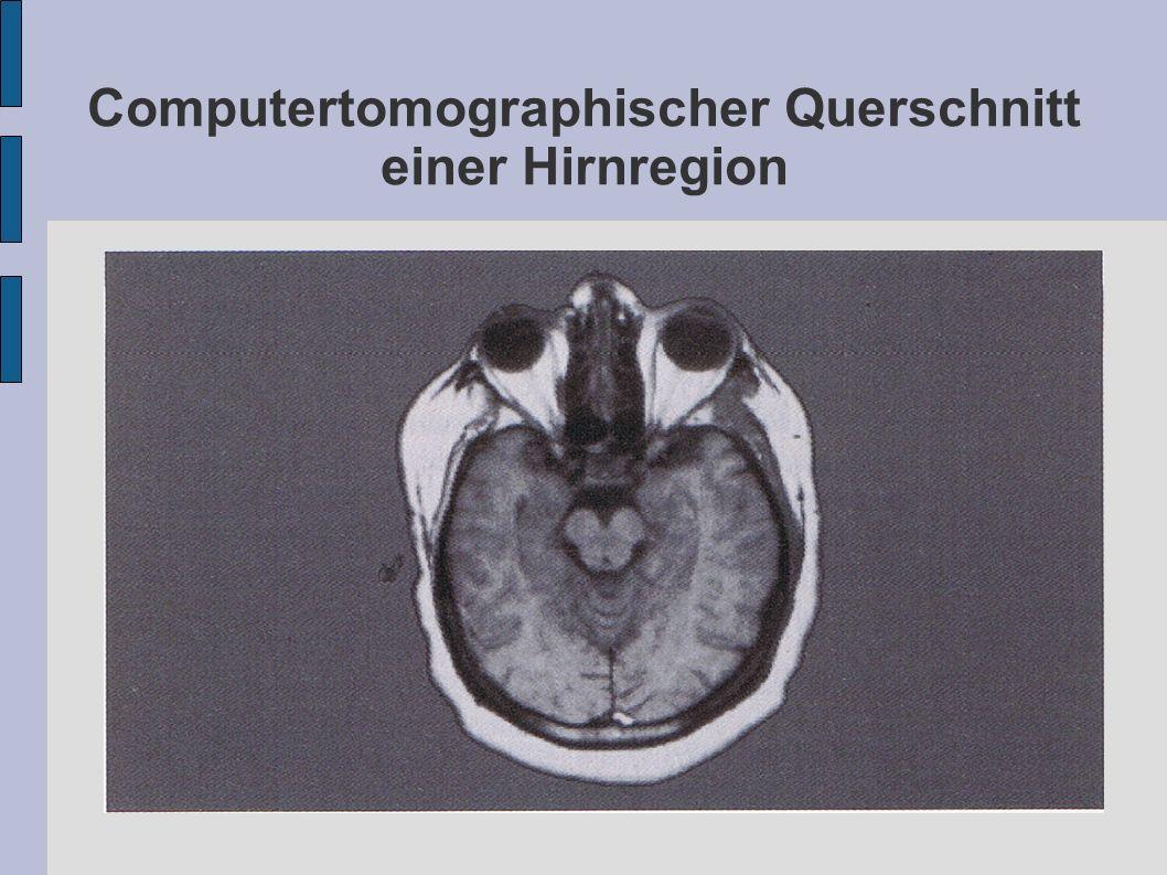 Computertomographischer Querschnitt einer Hirnregion