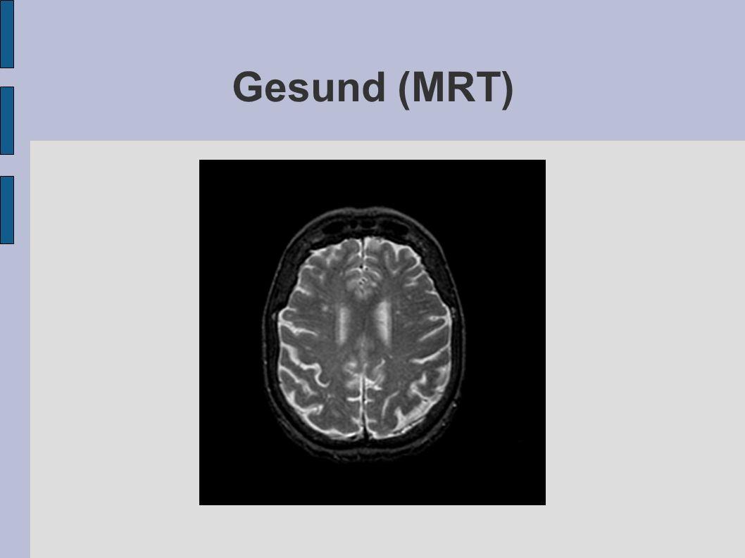 Gesund (MRT)
