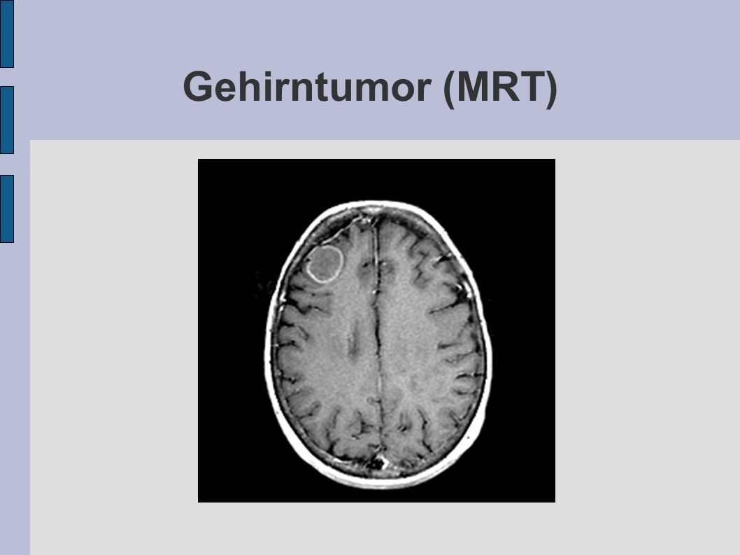 Gehirntumor (MRT)