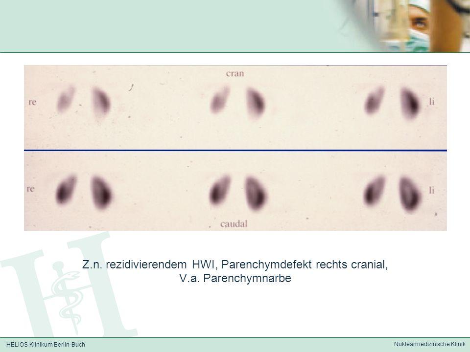 Z.n. rezidivierendem HWI, Parenchymdefekt rechts cranial,