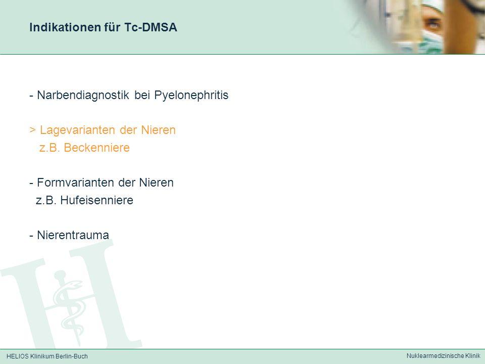 Indikationen für Tc-DMSA