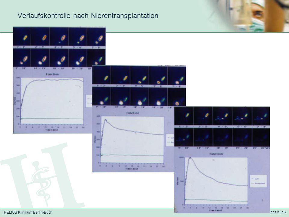 Verlaufskontrolle nach Nierentransplantation