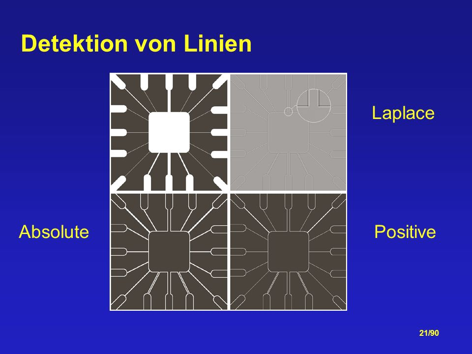 Detektion von Linien Laplace Absolute Positive
