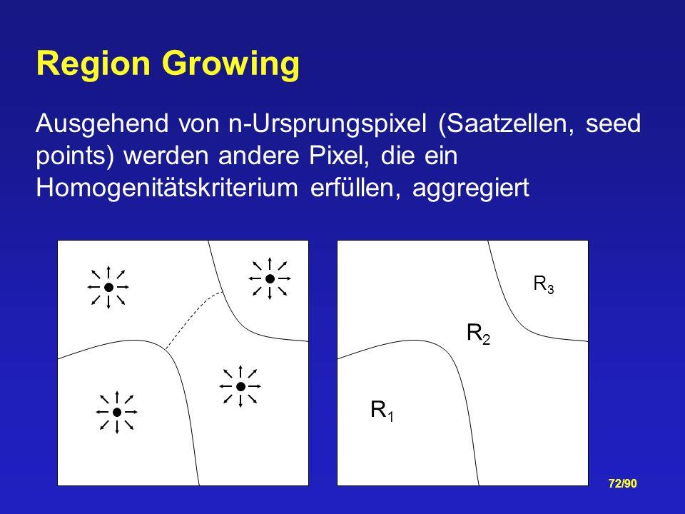 Region Growing Ausgehend von n-Ursprungspixel (Saatzellen, seed points) werden andere Pixel, die ein Homogenitätskriterium erfüllen, aggregiert.